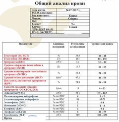 http://s1.uploads.ru/t/qRnko.png
